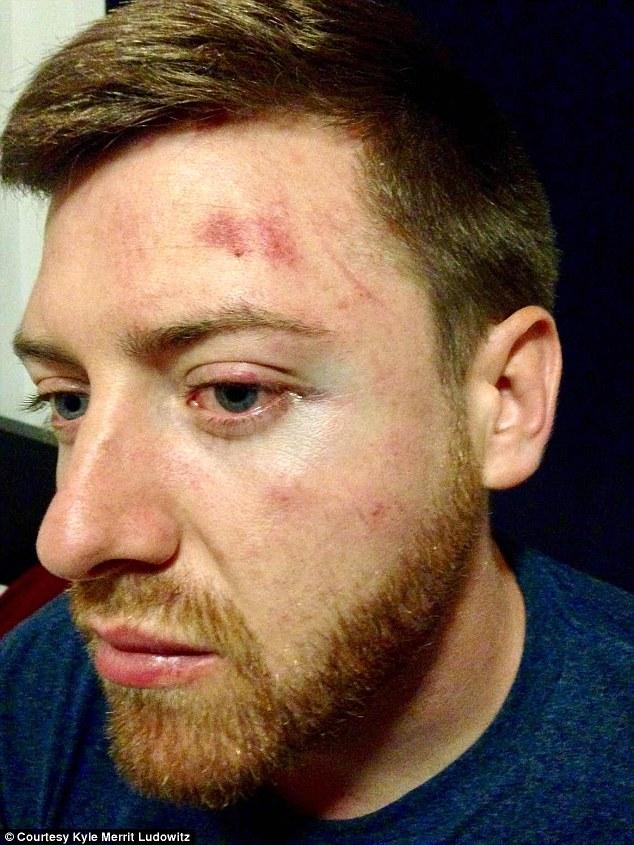 protest-man-beaten